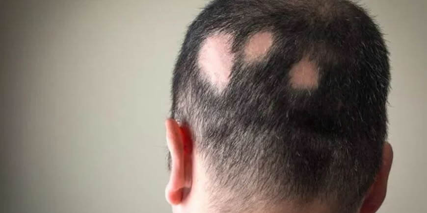 Alopecia (Baldness) & Medicinal Mushrooms